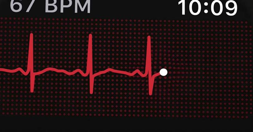 ECG en Apple Watch Series 4